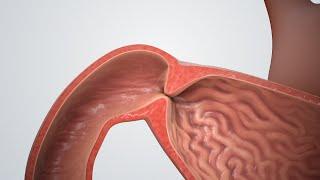 Pylorus-Stenose (Blockierter Magen)