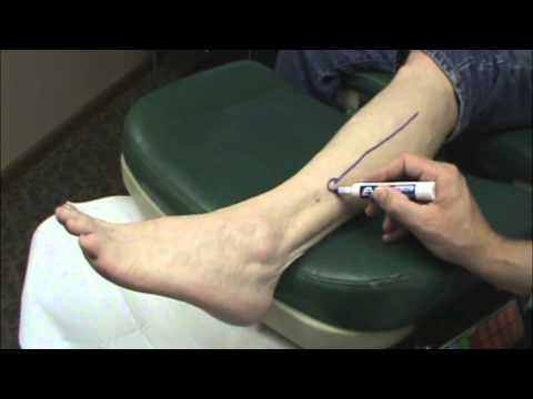 Nerve Surgery | Pre-Operation Testimonial | Bloomington ...