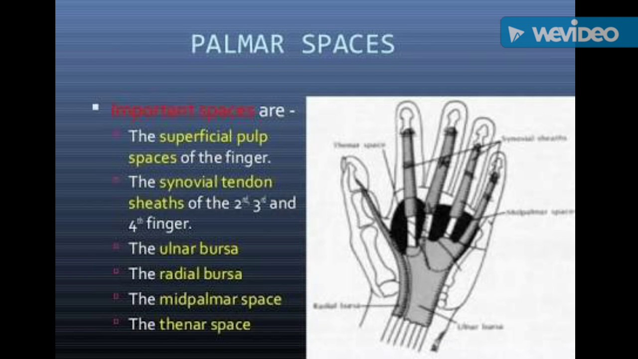 Upper limb medical pg image based questions neet aiims - YouTube