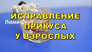 Врач Ортодонт и брекет-системы для взрослых, в стоматологии Люми-Дент, Киев(, 2015-11-10T09:21:45.000Z)