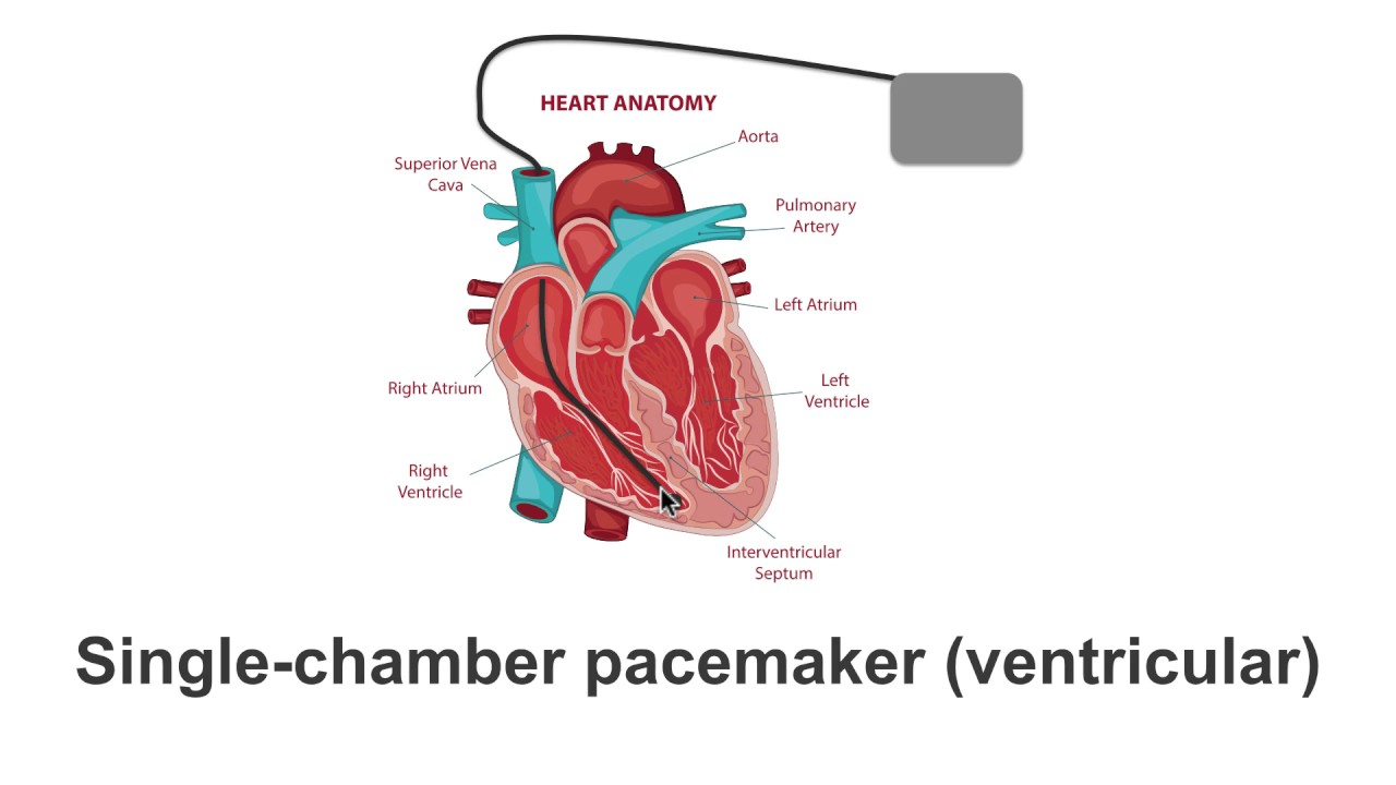 Pacemaker single chamber atrial. What are the differences ...