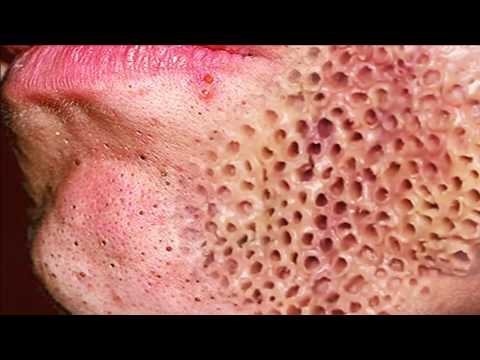 Trypophobia, Popping Pimples & Cysts or Warts!
