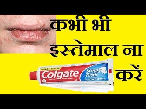 Dont use colgate on lips| Health tips by health guru