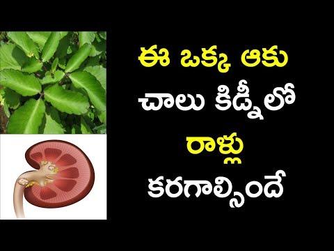 ఈ ఒక్క ఆకు చాలు కిడ్నీలో రాళ్లు కరగాల్సిందే   amazing health benefits of Bryophyllum pinnatum telugu