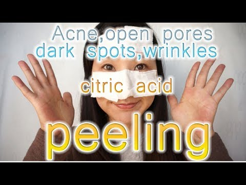 Noticing less of my pores and acne marks!!  Citric acid  face mask