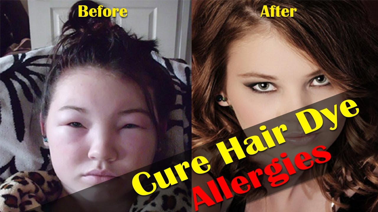 Home Remedies For Hair Dye Allergies | HealthCare.