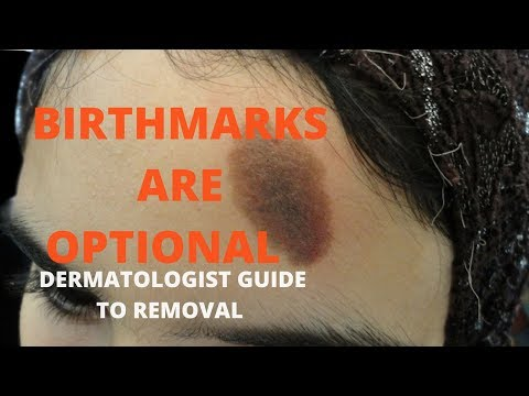 How to remove birthmarks