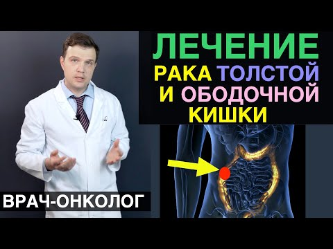 Рак толстой кишки - лечение рака ободочной кишки и рака толстой кишки