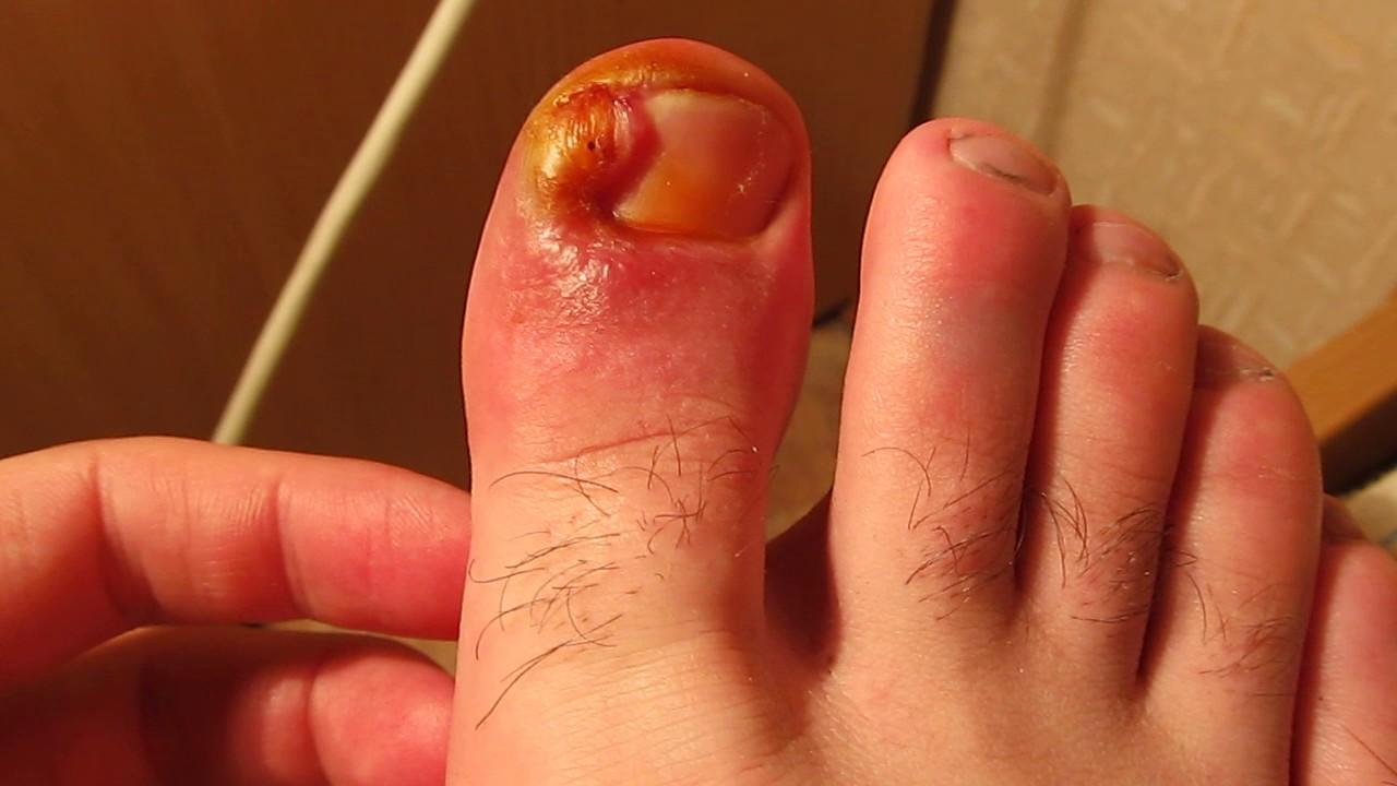 Избавиться от грибка ногтей за одно применение