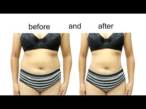 fat-loss---liposuction-vs.-coolsculpting