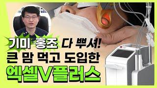 기미/홍조 레이저로 쉽게 치료하려면? 엑셀브이레이저 보…