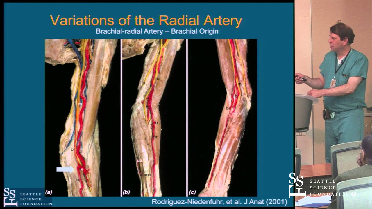 Vascular Anatomy of the Arm by John L. Petersen II, M.D., MHS - YouTube