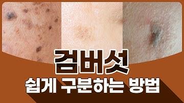 검버섯과 일광흑자 비슷하게 생겼는데요? 검버섯은 피부 양성 종양입니다. 검버섯 쉽게 구분하는 방법 피부과 전문의가 알려드릴게요.