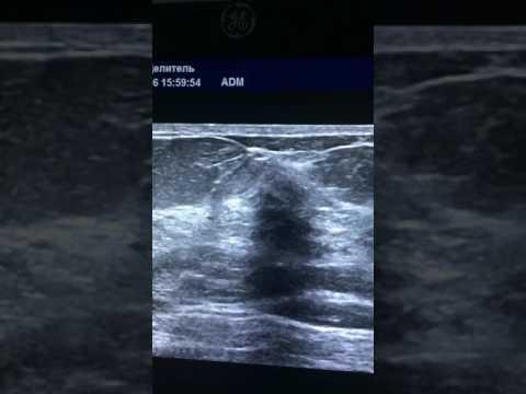 Узловая мастопатия молочной железы, лечение
