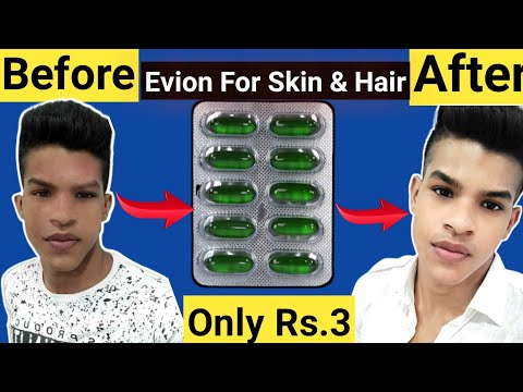 Evion 400 : Uses & Side Effect for Skin & Hair Care Routine