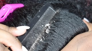 HUGE FLAKES |  DRY FLAKY SCALP | SCALP SCRATCHING EP27 #hugedandruff #scalpscratching