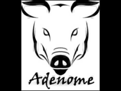 Adenome - Doux Jeyse (Dirty electro Mix)