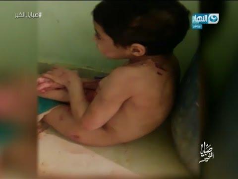 صبايا الخير | طفلة تعرضت لأبشع أنواع التمثيل بجسدها وهي على قيد الحياة ومش هتصدق مين الجاني