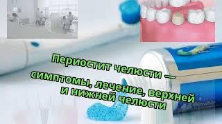 периостит челюсти  симптомы, лечение, верхней и нижней челюсти