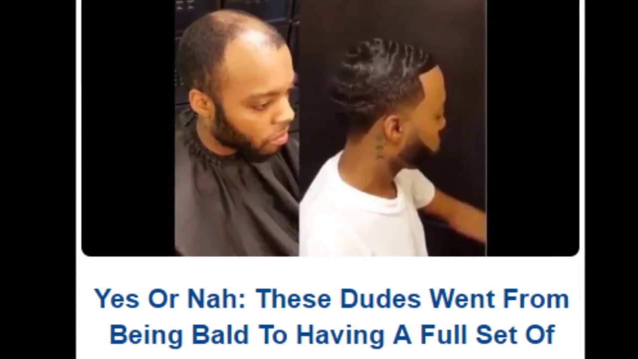 'Man Weaves' Offer Cover For Balding Men, Cash For Black Hair Care Industry