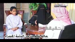 الهاشمي /حالة شفيت من ااثعلبة الحمراء