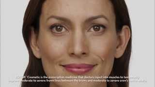 You Won't Believe Her Results! | Botox Cosmetics | Total Med Solutions | TotalMedSol
