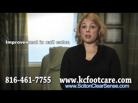 Laser Treatment for Toenail Fungus – Podiatrist in Kansas City, MO and Overland Park, KS