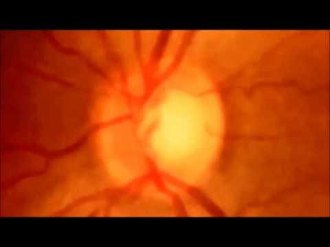 Γλαυκωμα - Τι πρέπει να γνωρίζετε - Αχιλλέας Μάνδαλος, Χειρουργός Οφθαλμίατρος