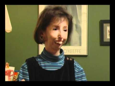 Scleroderma the Teresa Nadeau Story Part 1.mp4