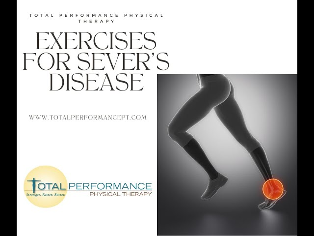 Exercises for Sever's Disease