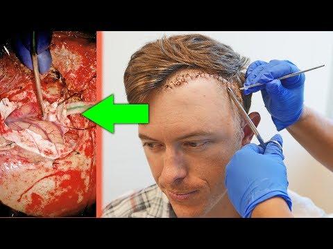 LOOKING INSIDE MY BRAIN! | What a Large Brain Tumor Looks Like