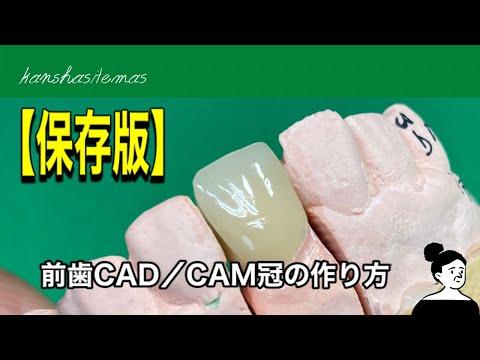 【歯科技工】保険でできる白い歯ハイブリットセラミック前歯の「CAD/CAM冠」作業動画