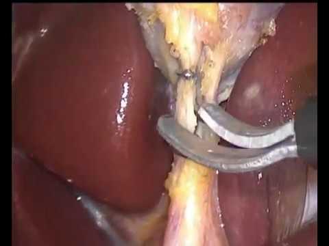 Laparoscopic cholesystectomy for gallbladder polyps