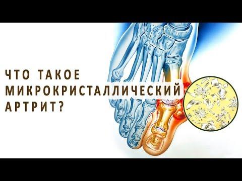 Что такое микрокристаллический артрит и как он лечится?