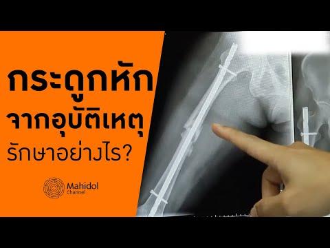'กระดูกหักจากอุบัติเหตุ' รักษาอย่างไร? [หาหมอ by Mahidol Channel]