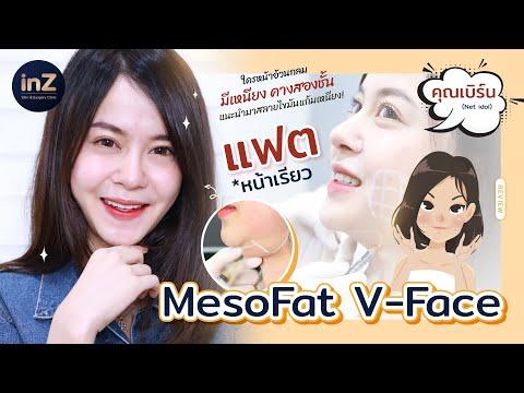 Meso Fat V-Face สลายไขมันแก้ม เหนียง
