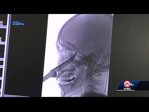 Teen Released From Hospital After Knife Removed From Skull