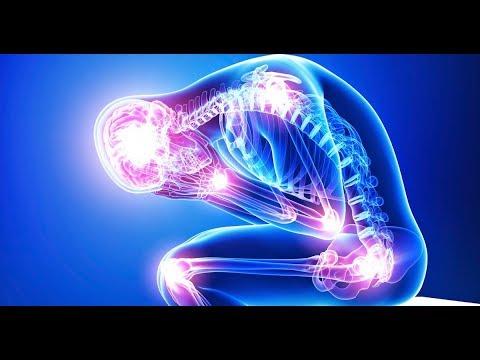 Fibromialgia de sinais comuns