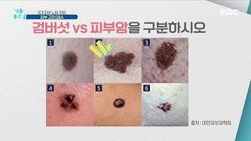 [기분 좋은 날] 검버섯을 방치하면 피부암이 될 수 있을까? MBC 201013 방송