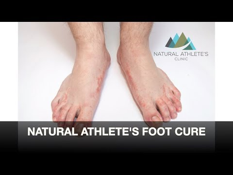 treating-athlete's-foot-the-right-way