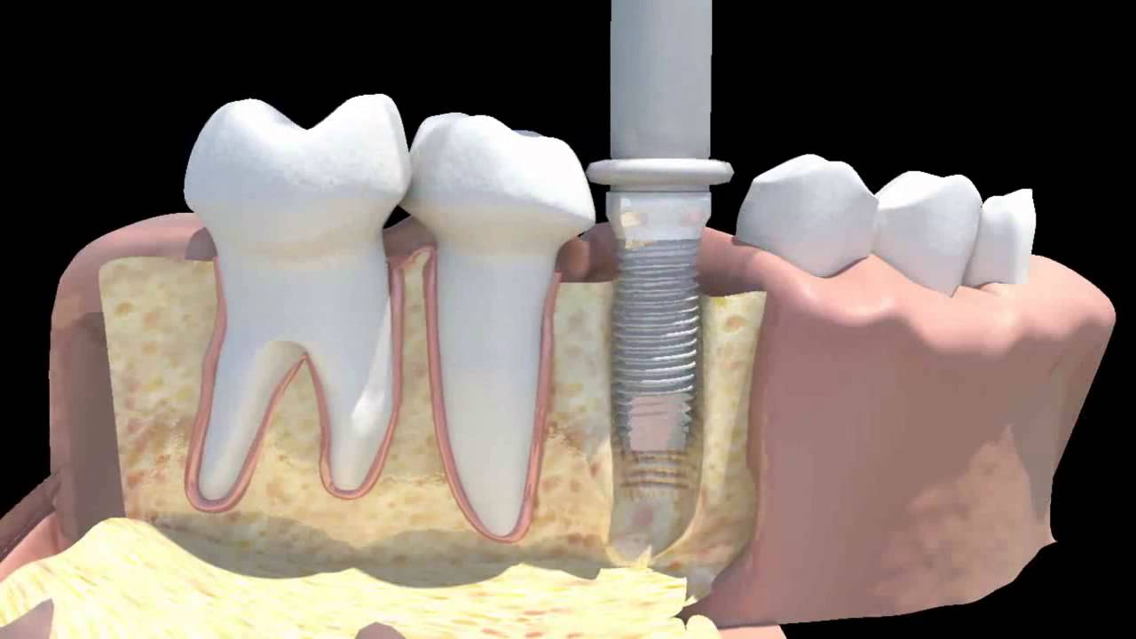 Z Look3 Implant System All Ceramic Implants Youtube