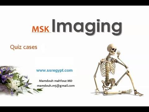 radiology quiz answers Radiology and medical imaging tutorials for uk medical students abdominal x-ray quiz large bowel obstruction xray.