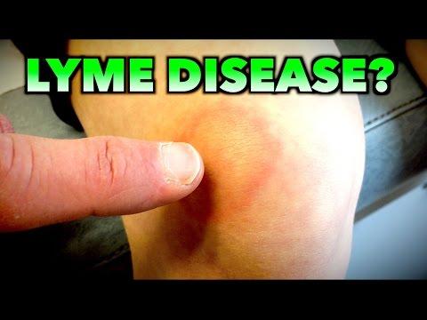 LYME DISEASE? | Dr. Paul