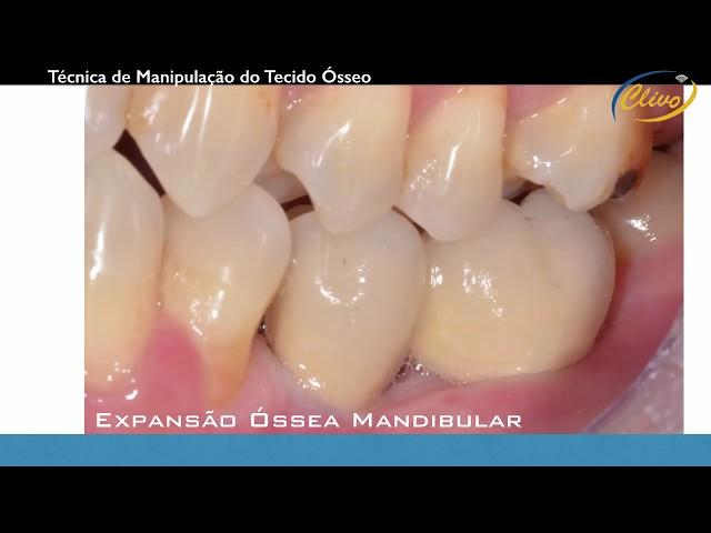 Expansão óssea para a colocação de Implantes Dentários