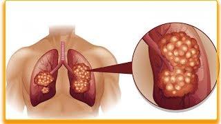 Wczesne objawy raka płuc – 9 najczęstszych objawów