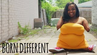 Living Without Hands – And I Couldn't Be Happier | BORN DIFFERENT