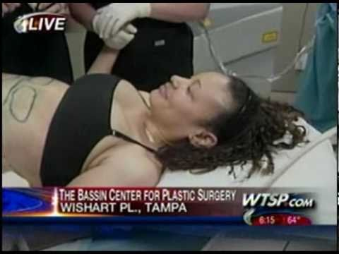 Live Aqualipo® Surgery Performed on Tampa Bay WTSP's 10 News - Part 3