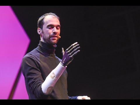 prothèse de bras | Doovi