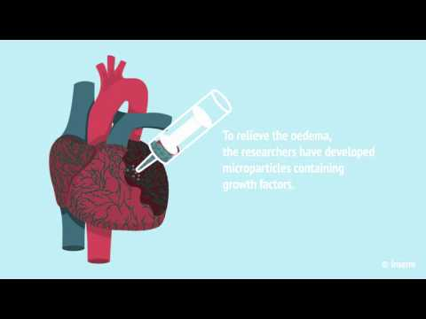 An invisible system to rescue the heart