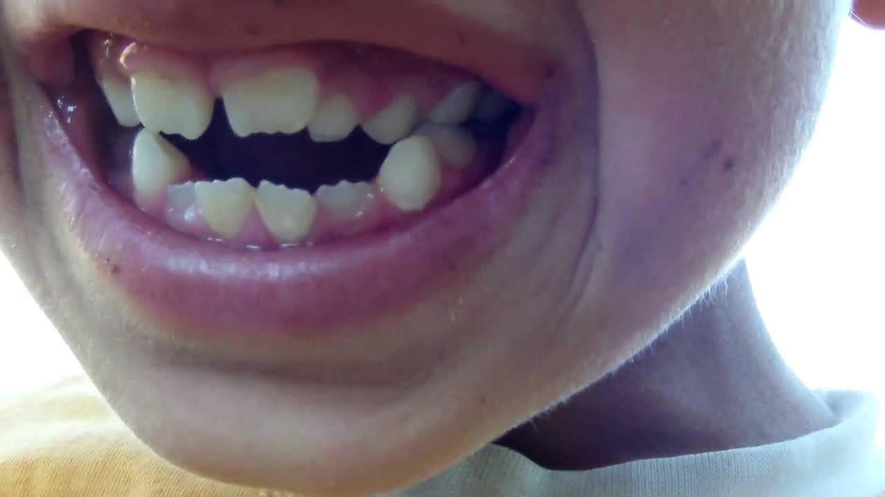 Diş Ağrısı Nasıl Azaltılır: Diş Ağrısına Evde Çözüm